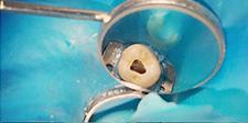 Endodontia – Turma VII